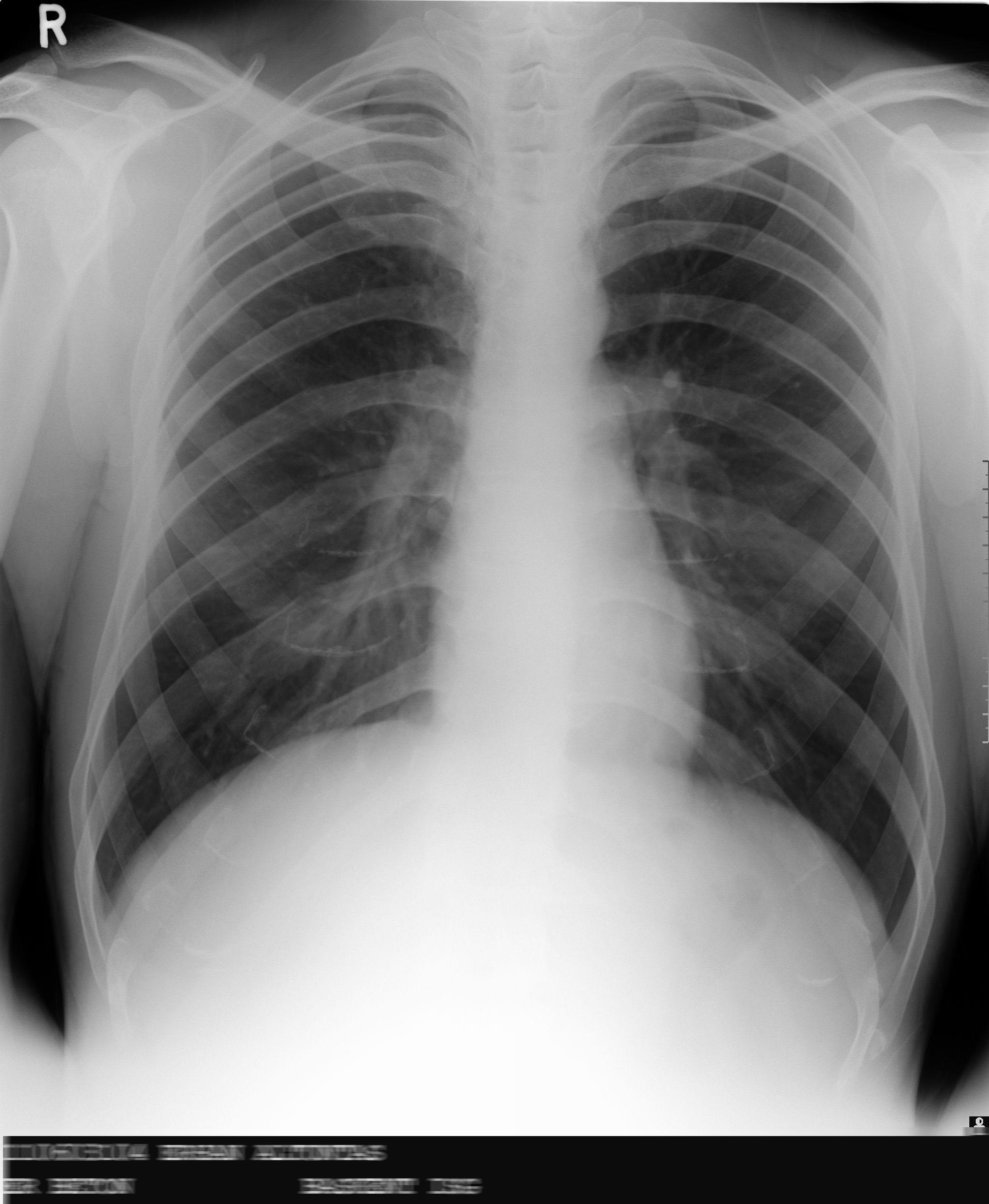 Dijital röntgen cr teknolojisi ile akciğer grafisi