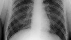 Dijital Röntgen CR Teknolojisi İle Akciğer Grafisi